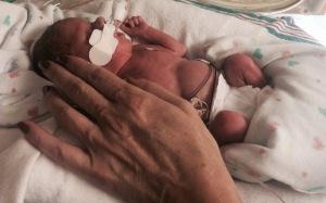 preemie premature baby